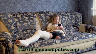 Elena amputee preview - Long Leg Cast