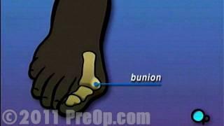 Taraklı ayak kemiği nasıl ve neden oluşur, tedavisi, ameliyatı, tavsiyeler