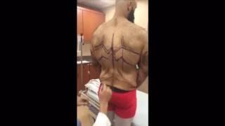 getlinkyoutube.com-Dr. Repta performs skin removal surgery