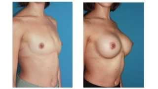 getlinkyoutube.com-Mamoplastia de aumento por via submamaria