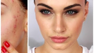 getlinkyoutube.com-Fake Good Skin ♡ Rosie Huntington-Whitely Inspired + My Acne Treatment | RubyGolani