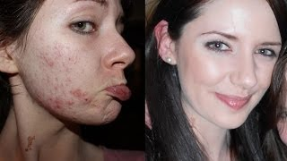 How To Get Clear Skin Naturally!