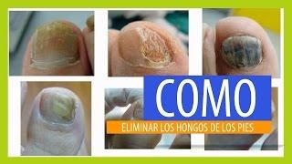 getlinkyoutube.com-Cómo Eliminar Los Hongos De Los Pies Con Remedios Caseros