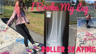 I Broke My Leg Roller Skating: My Broken Bone Story