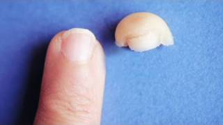 getlinkyoutube.com-CNN: Woman grows back severed finger tip