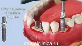 getlinkyoutube.com-Лечение зубов красивая улыбка коронки протезирование импланты СГС Швейцария с абатмантом