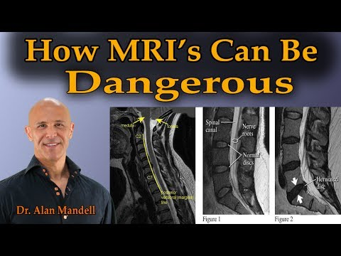 How MRI's Can Be Dangerous (The Truth Behind the Scenes) - Dr. Mandell