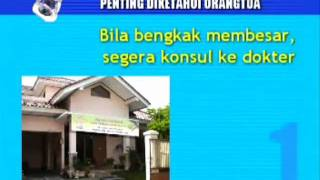 getlinkyoutube.com-Rumah sunatan in perawatan smart klamp