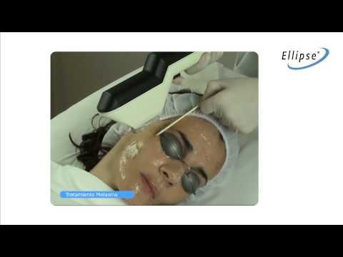 IPL : Tratamiento Melasma