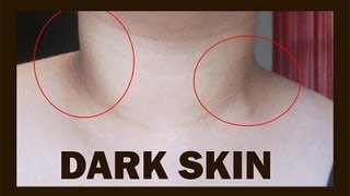 getlinkyoutube.com-Damn You: Dark Skin!