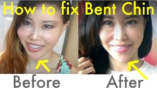 getlinkyoutube.com-Spoon Exercise for Bent Chin/Jawline | How to Fix Asymmetrical Face