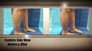 getlinkyoutube.com-Ankles, Cankles, Calves Liposuction Tampa, Sarasota, Orlando - 4 | Expert Dr. Su
