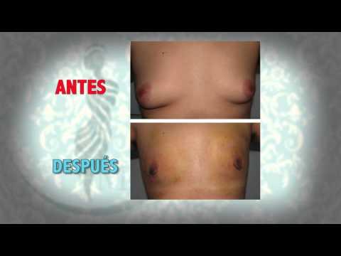 Ginecomastia -  Endurece los pectorales - reducción de pecho en el hombre