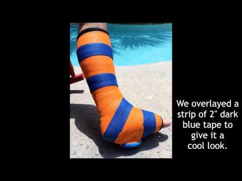 Short Leg Walking Cast Heel Crutching Black Crutches and Stockinette