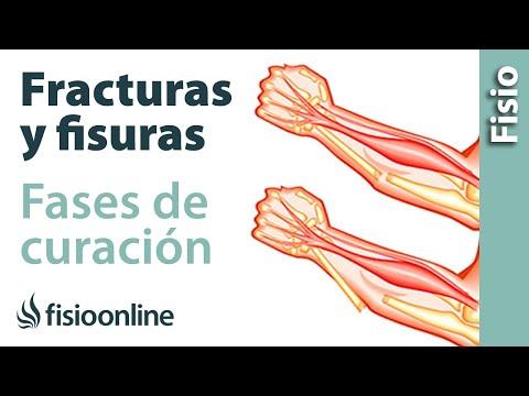 Fractura y fisura - Qué es y cuáles son sus fases de curación.
