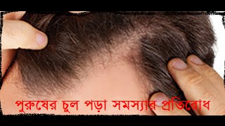 getlinkyoutube.com-পুরুষের চুল পড়া সমস্যার প্রতিরোধ