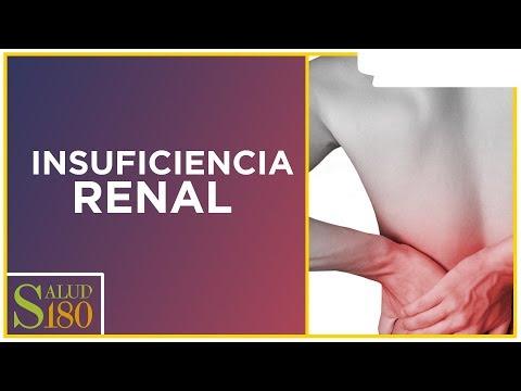 3 recomendaciones para cuidar la salud de tu riñón