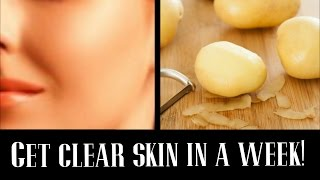 getlinkyoutube.com-How to get Clear Glowing skin using Potato Juice | EASY & FAST