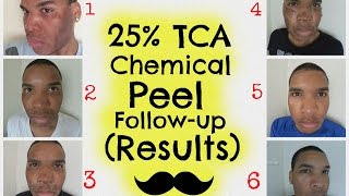 Chemical Peel | 25% TCA Peel Follow-up (Results) HD | Session 3