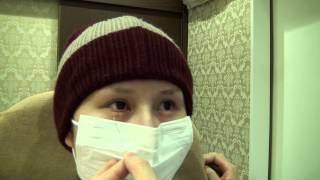 getlinkyoutube.com-高須クリニック たれ目形成(グラマラスライン)手術後1週間の腫れ、経過、効果、ダウンタイム、後戻り、痛み、抜糸について 逆さまつ毛修正もしました 美容整形外科動画