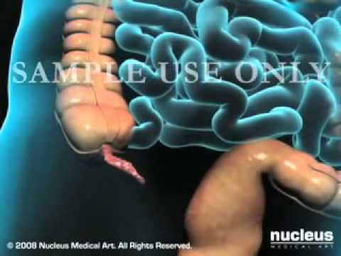 Laparoscopic Appendectomy Surgery for Appendicitis