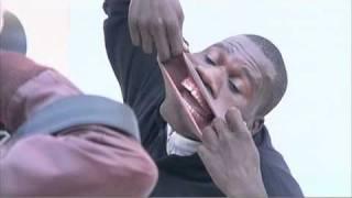 Francisco Domingo Joaquim, warga Angola yg dicatat Guinness World Records, sbg pemilik mulut terlebar di dunia. Ia menunjukkan bibir & mulutnya sgt elastis sehingga bisa terbuka 17 cm. Ia mampu memasukkan kaleng Coke dan memutarnya dgn mulut.