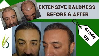 getlinkyoutube.com-Megasession hair transplant in India by Dr Tejinder Bhatti