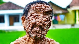 Trypophobia Lovers - 5 Weird Skin Conditions!