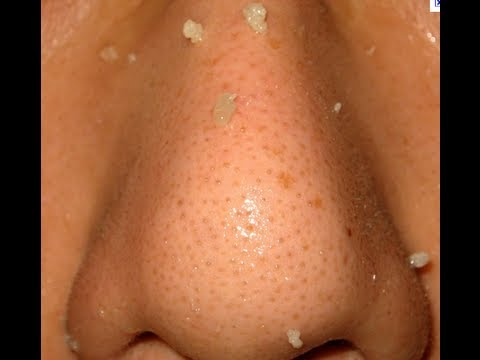 Get rid of blackheads and clogged pores WARNING GRAPHIC banishacnescars.com