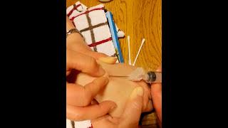 getlinkyoutube.com-DIY at home ganglion cyst removal