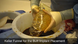 getlinkyoutube.com-Secondary Butt Implant Surgery Video, Small Implants Exchanged with 875cc Round Silicone Implants
