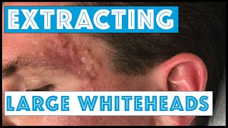 getlinkyoutube.com-Acne Vulgaris and Extracting large Whiteheads - Part 1