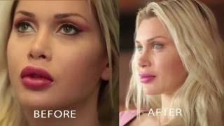 getlinkyoutube.com-Cosmetic Surgery Model Pixee Fox gets Permanent Green Barbie Eyes Brightocular