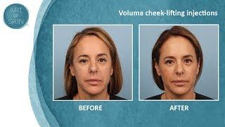 getlinkyoutube.com-Voluma cheek lifting injections San Diego