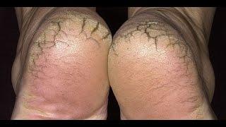getlinkyoutube.com-افضل واروع وصفة لتتخلصى من تشقق القدمين بشكل نهائى | خلطة طبيعية للتخلص من تشقق القدمين HD