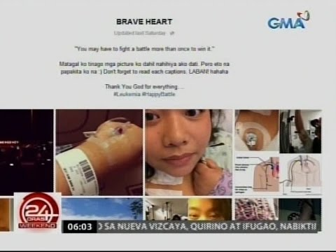 leukemia tagalog Symptoms of chronic leukemia may include fever, feeling very tired, and weight loss this part of the emedtv library discusses symptoms of chronic leukemia seen with chronic myelogenous leukemia (cml) and chronic lymphocytic leukemia (cll).