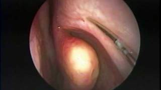 getlinkyoutube.com-Endoscopic Treatment of Allergic  Fungal Maxillary Sinusitis