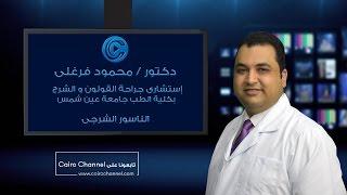 getlinkyoutube.com-علاج الناسور الشرجى - دكتور محمود فرغلى