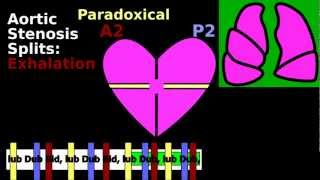 Split S2 Cardiac Auscultation Inspiration Wide Paradoxical Fixed