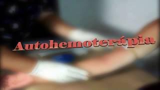 getlinkyoutube.com-Autohemoterapia - Explicación y Aplicación