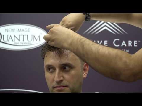 saç protezi önce sonra video