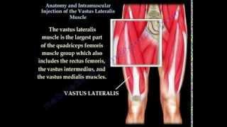 getlinkyoutube.com-Vastus Lateralis intramuscular Injection - Everything You Need To Know - Dr. Nabil Ebraheim