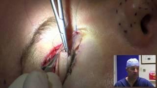 getlinkyoutube.com-Eyelid Surgery in 10 Minutes