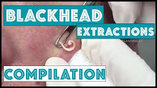 getlinkyoutube.com-Long and Satisfying Blackhead Extractions: A Dr Pimple Popper Compilation
