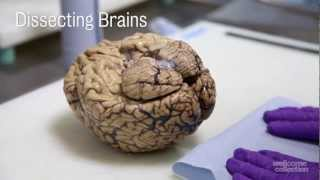 getlinkyoutube.com-Dissecting Brains
