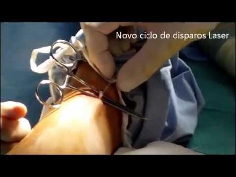 Cirurgia de Varizes por Laser