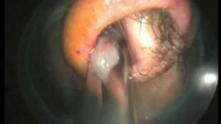 getlinkyoutube.com-Endoscopic Sinus Surgery  (Dr. Rey Caro)