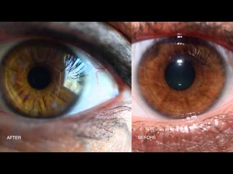 Iridology My Eye Colour Changes
