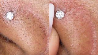getlinkyoutube.com-DIY How To Remove Black/White Heads ! 2 WAYS!  Queenii Rozenblad