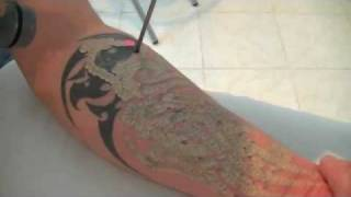 getlinkyoutube.com-enlever les tatouages au laser, tattoo removal